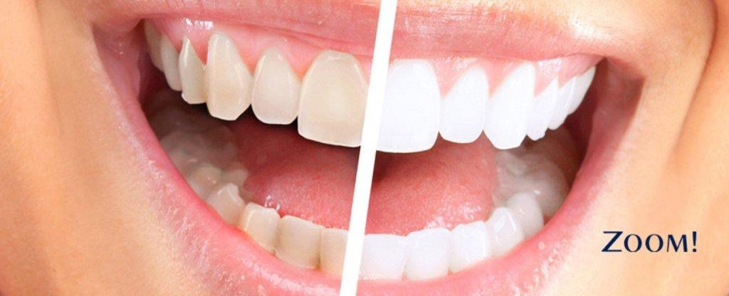 pashias dental clinic - Teeth Whitening